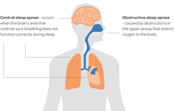 Ultimate Guide – Everything You Need to Know About Sleep Apnea